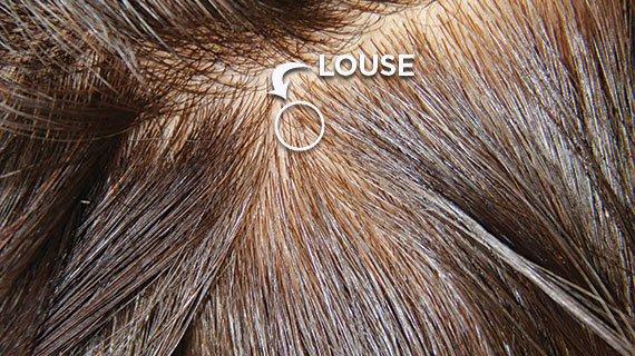 Head Lice Screening Options | Lice Clinics of America Head Lice